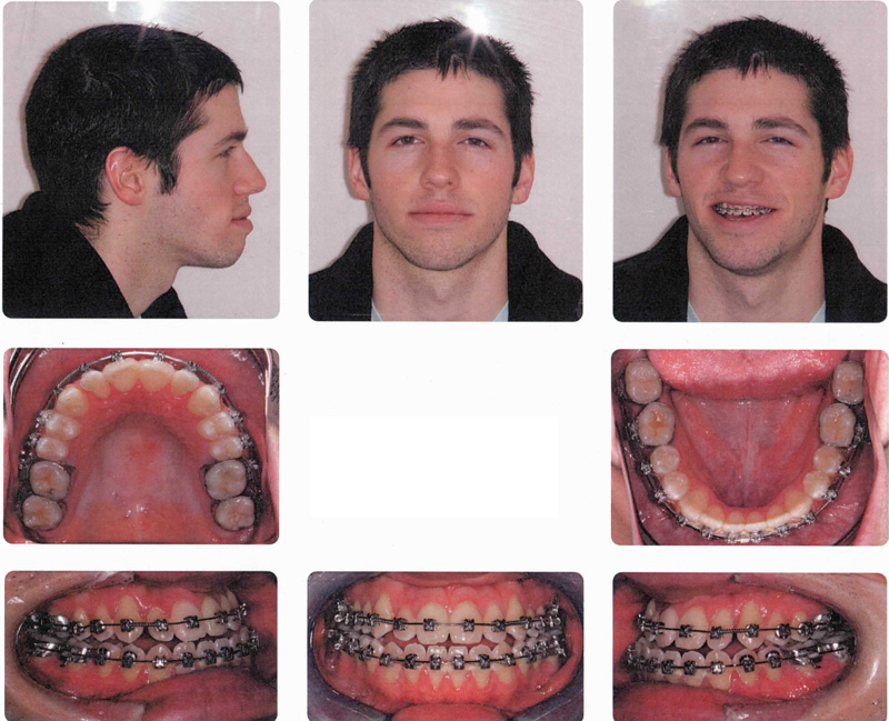 Before and After Photos – Double Jaw Surgery